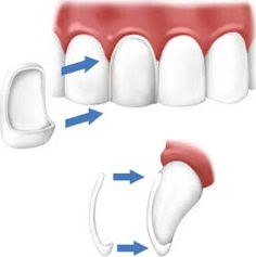 les facettes dentaires ou sourire hollywoodien courbevoie 92400 dentiste centre dentaire. Black Bedroom Furniture Sets. Home Design Ideas